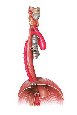 Oesophagus Poster by Asklepios Medical Atlas