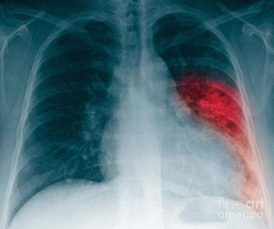 Pneumonia, X Ray Poster