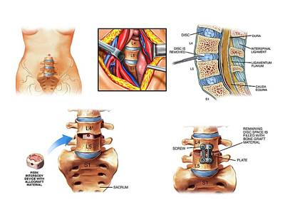 Surgery To Fuse The Lumbar Spine Poster