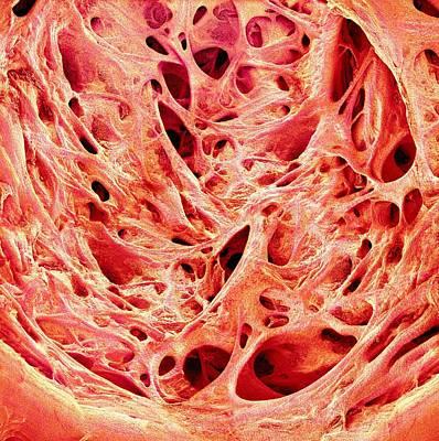 Trabeculae Carneae In The Heart Poster by Susumu Nishinaga