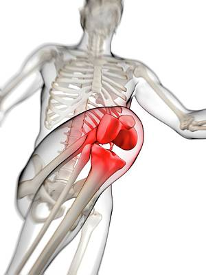 Human Knee Pain Poster by Sebastian Kaulitzki