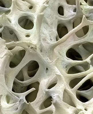 Bone Tissue Poster by Steve Gschmeissner