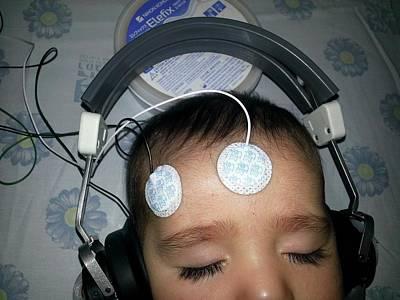Brainstem Evoked Response Audiometry Poster