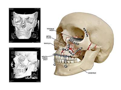 Facial Skull Fractures Fixation Poster by John T. Alesi