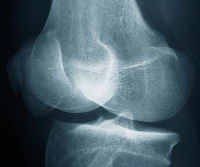 Fractured Patella Poster by Zephyr