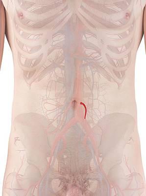 Human Artery Poster