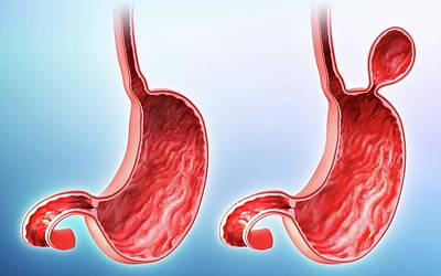 Human Stomach With Hernia Poster