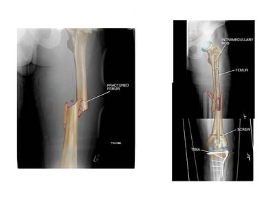 Internal Fixation Of Fractured Femur Poster by John T. Alesi