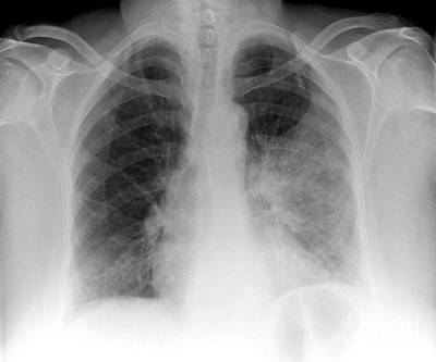 Pulmonary Consolidation, X-ray Poster