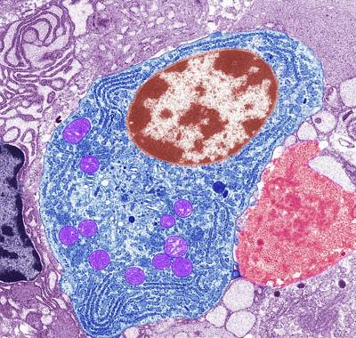 Thyroid Cancer Cell Poster by Steve Gschmeissner