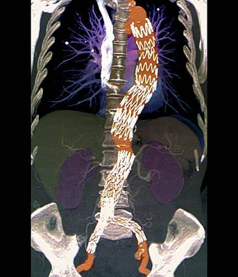 Abdominal Aneurysm Poster by Zephyr