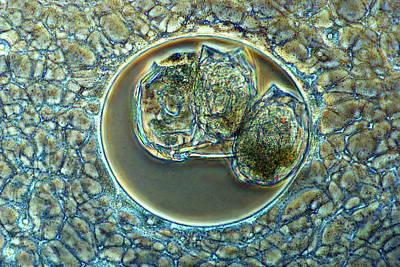 Actinosphaerium Protozoan Poster