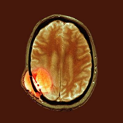 Brain Cancer After Surgery Poster