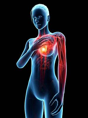 Human Heart Attack Poster