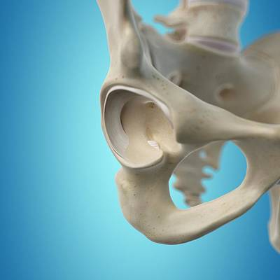 Human Hip Joint Poster by Sciepro