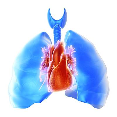 Pulmonary Hypertension, Artwork Poster by Science Photo Library