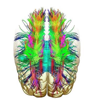 White Matter Fibres And Brain Poster by Alfred Pasieka