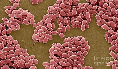 Anthrax Bacteria Sem Poster by Science Source