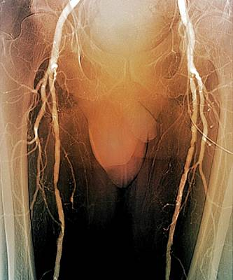 Arteritis In Diabetes Poster by Zephyr