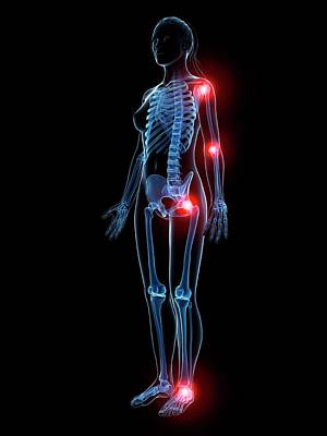 Human Joint Pain Poster by Sebastian Kaulitzki