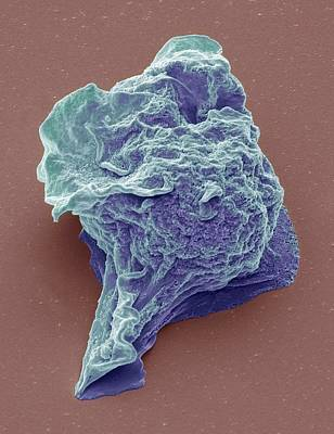 Lymphoma Cancer Cell Poster by Steve Gschmeissner