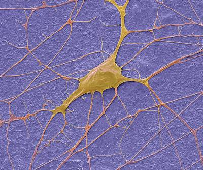Motor Neurone Poster by Steve Gschmeissner