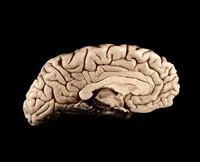 Einstein's Brain Poster