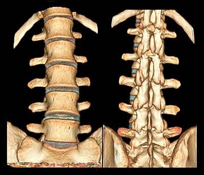 Normal Spine Poster