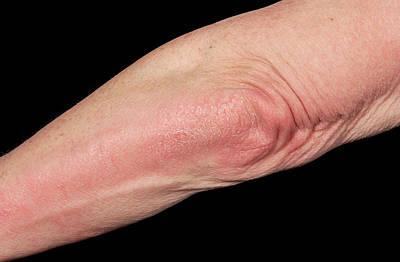 Psoriatic Arthritis Poster