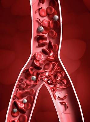 Sickle Cell Anaemia Poster by Tim Vernon