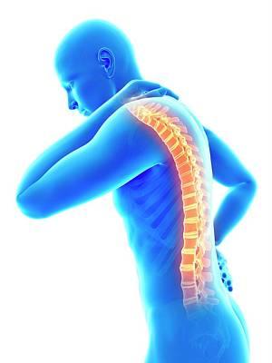 Human Back Pain Poster by Sebastian Kaulitzki