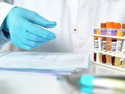 Blood Testing Poster