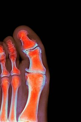 Degenerative Foot Deformation Poster