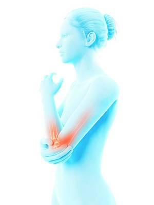 Human Elbow Joint Pain Poster by Sebastian Kaulitzki
