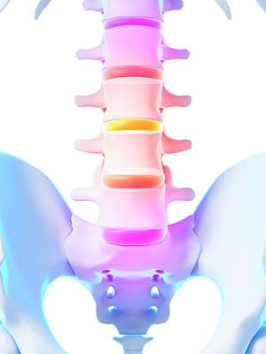 Human Spinal Discs Poster
