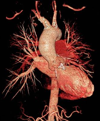 Aortic Aneurysm In Hypertension Poster