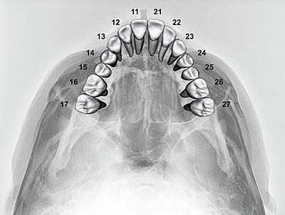 Normal Teeth Poster by Zephyr