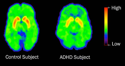 Adhd Levels Of Dopamine, Pet Poster