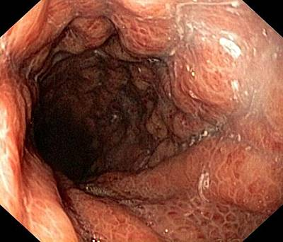 Alcohol-related Gastritis Poster