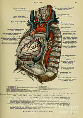 Anatomy Human Body Old Anatomical 76 Poster by Boon Mee
