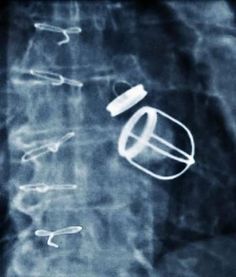 Artificial Heart Valves Poster