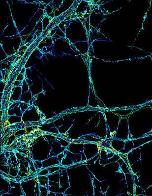 Axonal Cytoskeleton, Storm Image Poster