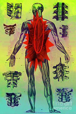 Back Problems Poster by Dennis D. Potokar