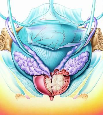 Benign Prostatatic Hyperplasia Poster by John Bavosi