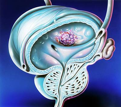 Bladder Tumour Poster