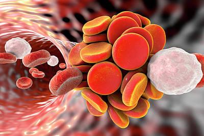 Blood Clot Poster by Kateryna Kon