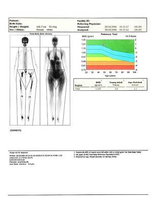Bone Density Scan Poster by Saturn Stills