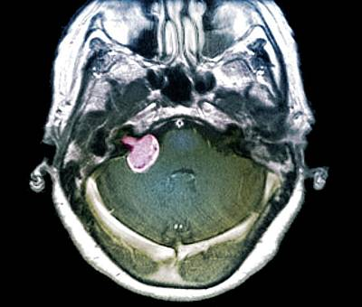 Brain Tumour Poster by Zephyr