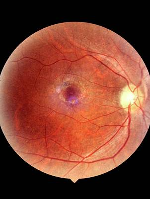Bull's Eye Maculopathy Of The Eye Poster