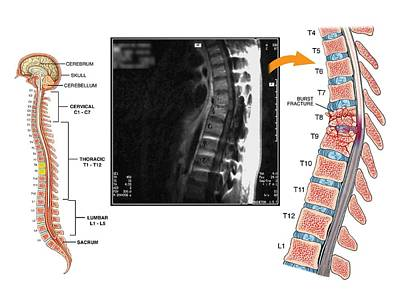 Burst Fractures Of The Thoracic Spine Poster by John T. Alesi